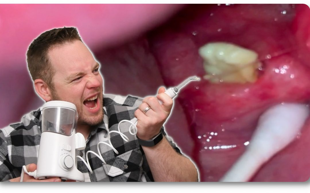 5 Tips On Using The Waterpik For Removing Tonsil Stones
