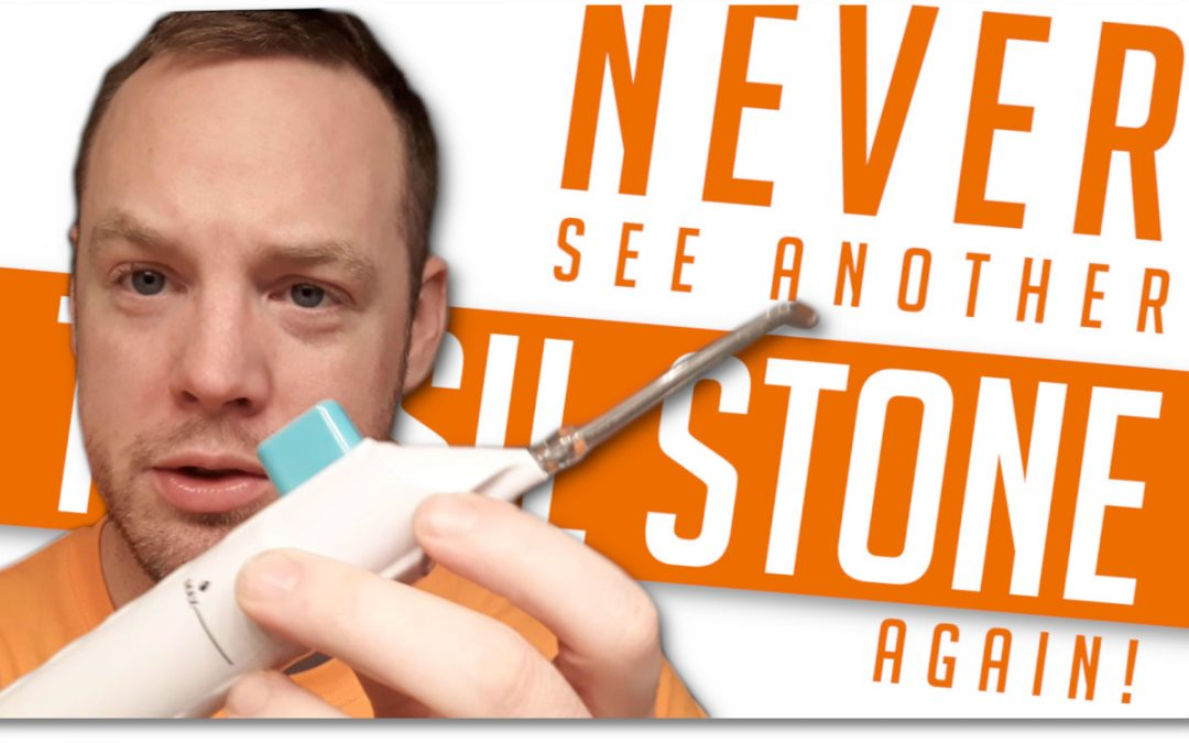 The Best Tonsil Stone Removal Tools That Actually Work